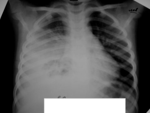 Первичная пневмония