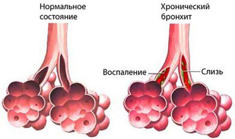При обострении воспаления в бронхах происходит изменение секреторного аппарата и усиление продукции вязкой слизи (на фото)