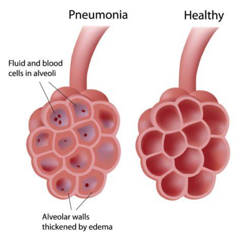 При очаговой пневмонии поражаются отдельные альвеолы и бронхиолы