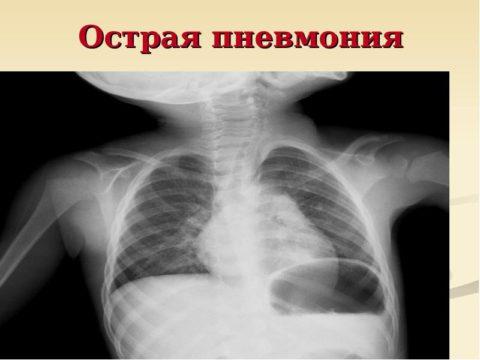 Пример развития острой пневмонии