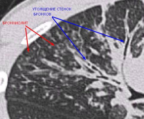 Признаки бронхопневмонии на КТ