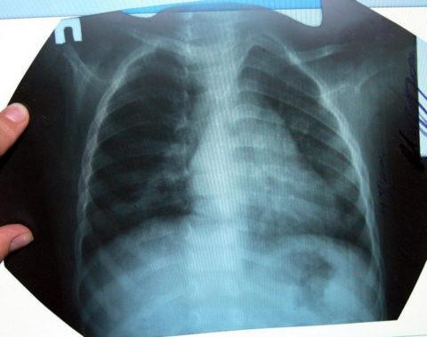 Признаки пневмонии на рентгенографии.