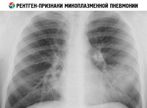 Изменения хорошо видны на рентгене
