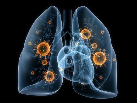 В чем опасность воспаления легких?