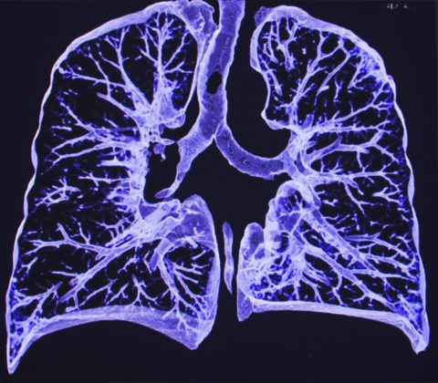 В каких случаях делают МРТ.