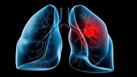 Воспалительный процесс в легких.