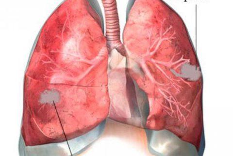 Абсцесс легкого при пневмонии.