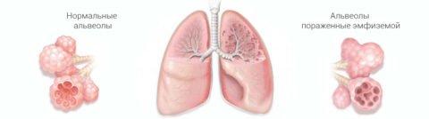 Альвеолярные стенки растягиваются