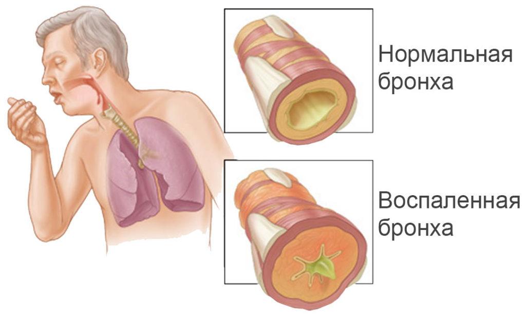 Травы при бронхите и бронхиальной астме у детей