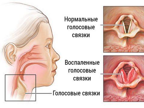 Голосовые связки и гортань при ларингоскопии