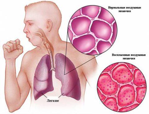 Инфильтрация легких эозинофилами