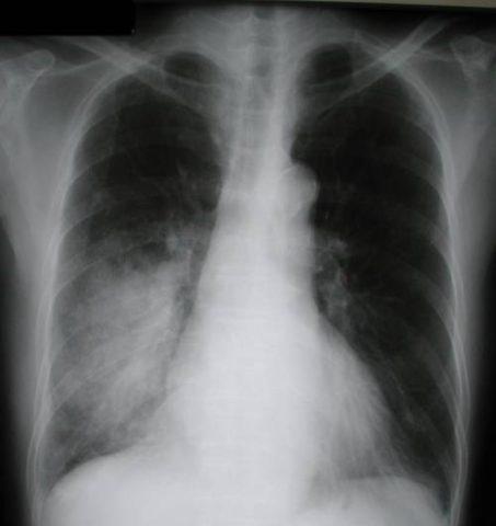На фото рентгеновских снимок, на котором легкие с воспалением.