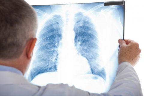 Наиболее явные признаки заболевания проявляются в фазу распада: возникает продуктивный кашель с мокротой, возможно кровохарканье.