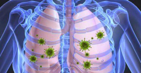 Осложнение бронхита – острая пневмония