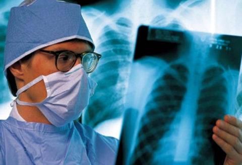 Острая форма этой патологии на начальных стадиях по течению схожа с внебольничной пневмонией или ОРВИ.