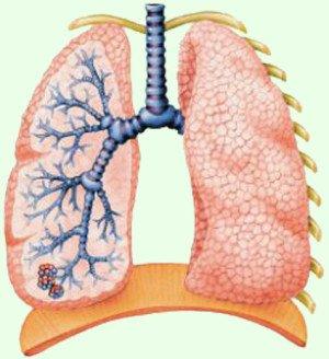 Первичный туберкулез в правом легком