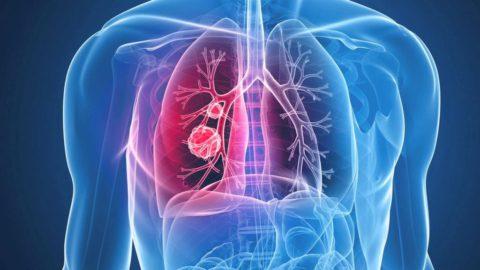 Пневмония поражает лёгочные ткани