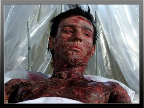 Поражение кожных покровов при лучевой болезни