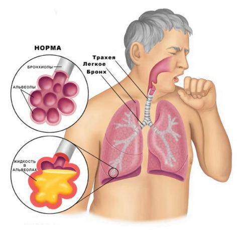 При воспалении в альвеолах скапливается жидкость.