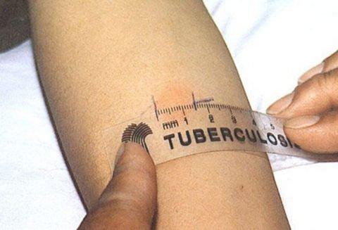 Проявления скрытого туберкулеза