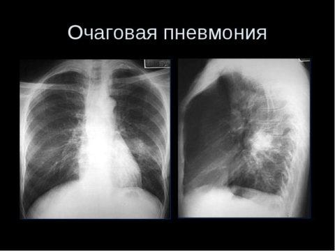 Рентген очаговой пневмонии