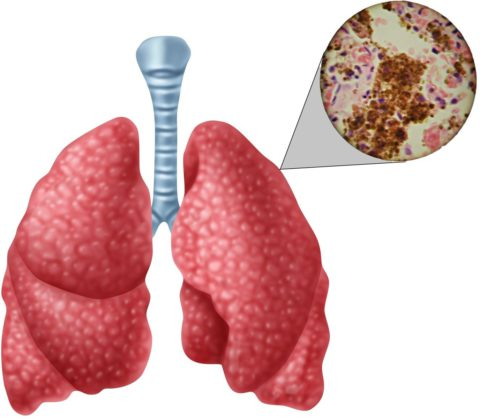 Так выглядит микроскопическая картина при туберкулёзе
