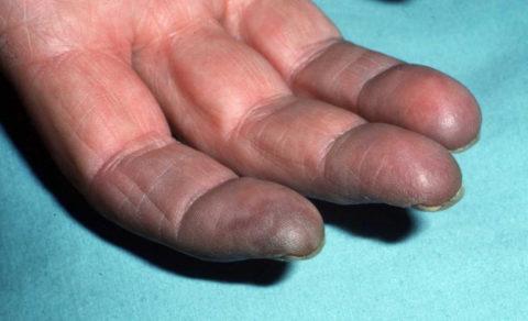 Цианоз пальцев руки