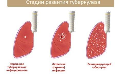 Какие бывают виды заболевания?
