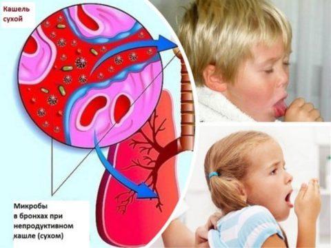 В большинстве случаев патология у детей спровоцирована пневмококками, стрептококками и гемофильной палочкой