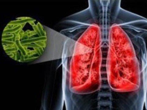 Вид туберкулеза