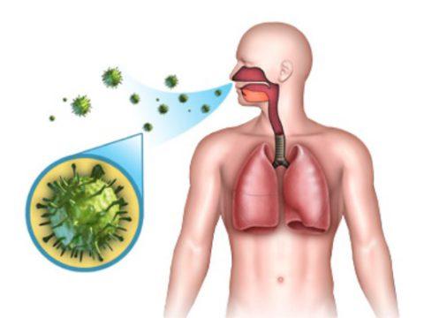 Вирусный бронхит