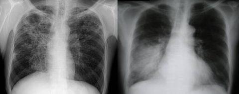 Какая диагностическая процедура вреднее?