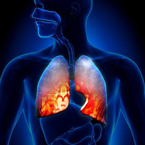 Заболевание поражает оба легких человека