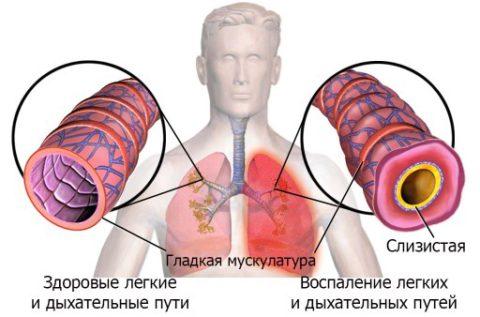 Затруднение дыхания обусловлено и сужением бронхов.