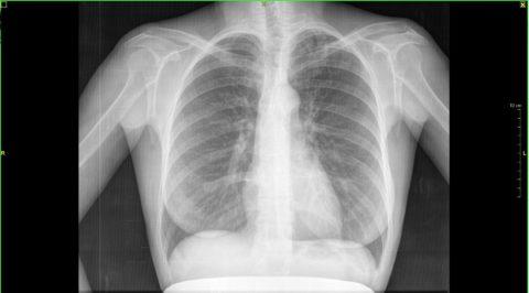 Здоровые легкие человека рентген