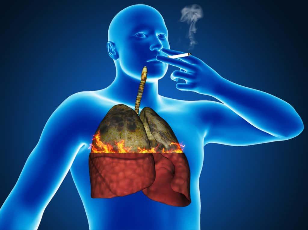 Болят легкие от отказа от курения