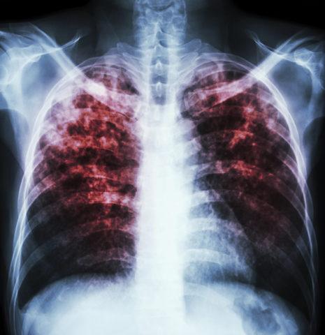 Микобактериоз легких у человека лечение в домашних условиях быстро thumbnail