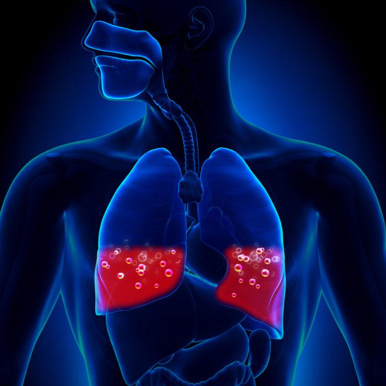 Сердечная астма и отек легкого клиника