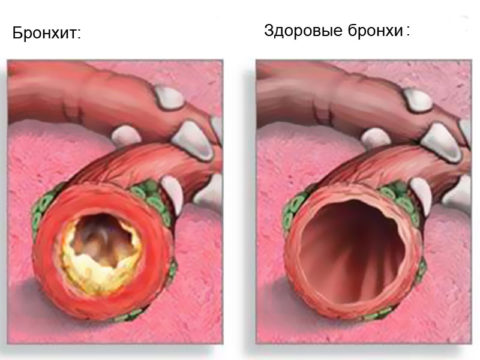 Сужение просвета бронхов за счет воспаления слизистой вызывает спазм и приступы удушья.