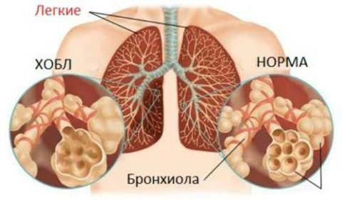 Люди с ХОЗЛ значительно чаще болеют пневмониями