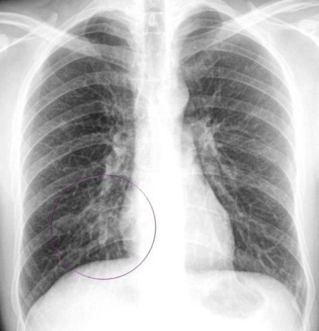 На фото рентген-снимок новорожденного с врожденной пневмонией