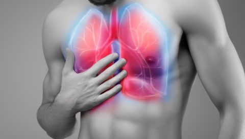 Начальную стадию пневмонии часто путают с инфекционными респираторными заболеваниями