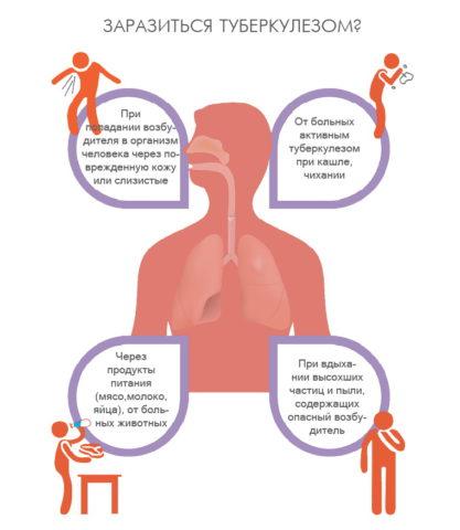 Основные пути передачи туберкулеза (слева при закрытой, справа – открытой форме).