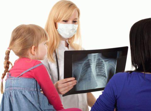 Детский туберкулез в последнее время регистрируется значительно чаще, нежели тридцать лет назад