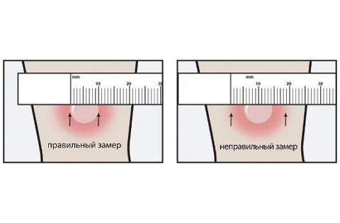 Как нужно измерять пробу Манту через трое суток после укола