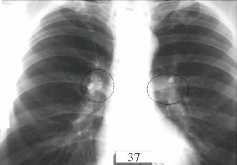 На рентгеновском снимке кругами показан туберкулезный бронхоаденит