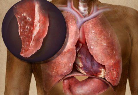 Разрушение легочной ткани при развитии туберкулеза в нижних отдела, затем в патогенез будет вовлечена плевра