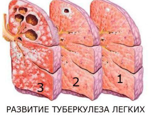 Схематическое состояние легких на разных стадиях