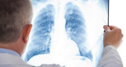 В руках пульмонолога рентгеновский снимок с признаками фиброза легких