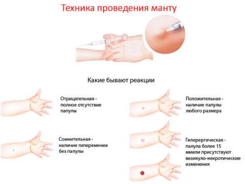 Виды кожных проявлений после введения туберкулина